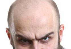 파랗게 번진 두피문신, 재시술로 회복이 가능할까요?