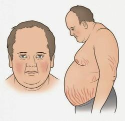 쿠싱증후군 원인과 증상 및 치료법
