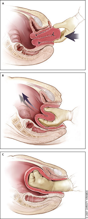 ̺�비닛 Obsteric Hemorrhage Ii During Delivery