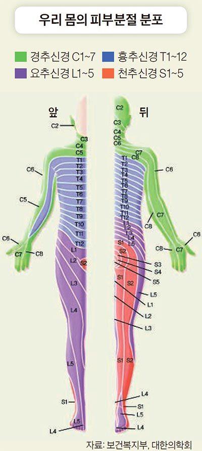 대상포진帶狀疱疹 - 띠 모양의 발진