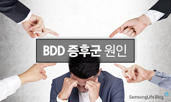 BDD 증후군