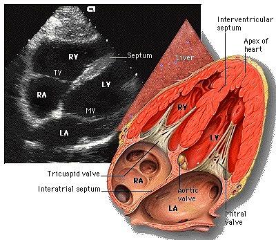 interatrial septum interventricular septumInteratrial Septum