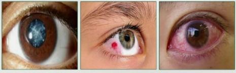 눈 위험신호
