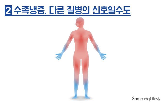 수족냉증 손시림 발시림 혈액순환